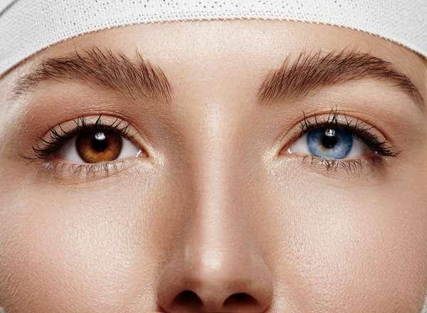 Blogue Visique | Pourquoi nos yeux sont de couleurs différentes